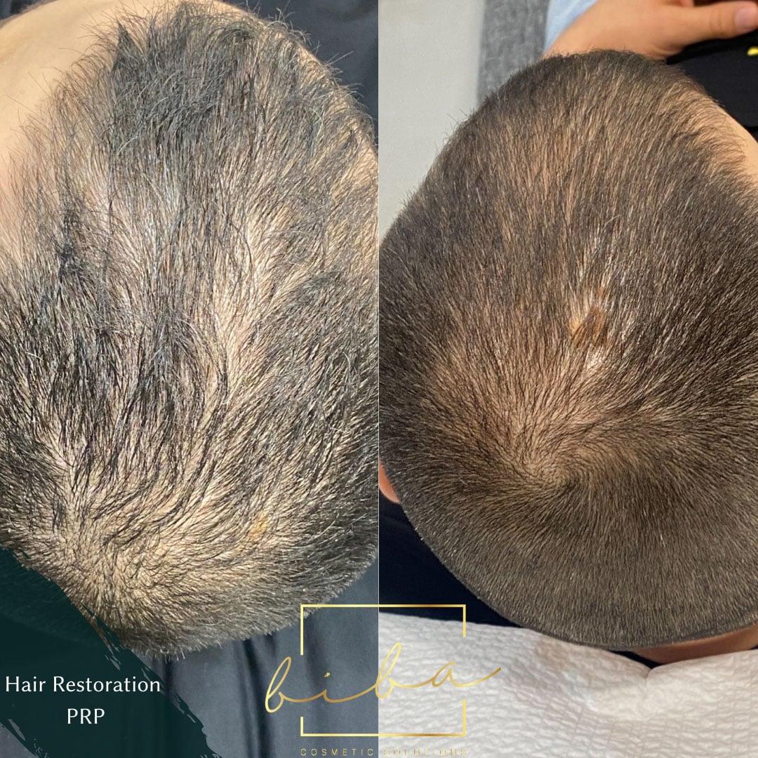 Hair Growth Treatment Sydney